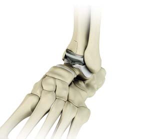 Ankle Joint Replacement