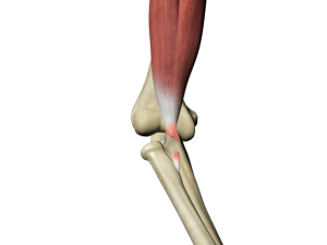 Distal Biceps Tendon Tear
