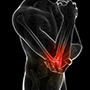 Triceps Injuries